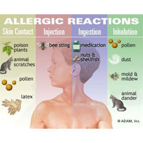 30 мая известен как Всемирный день борьбы против астмы и аллергии.