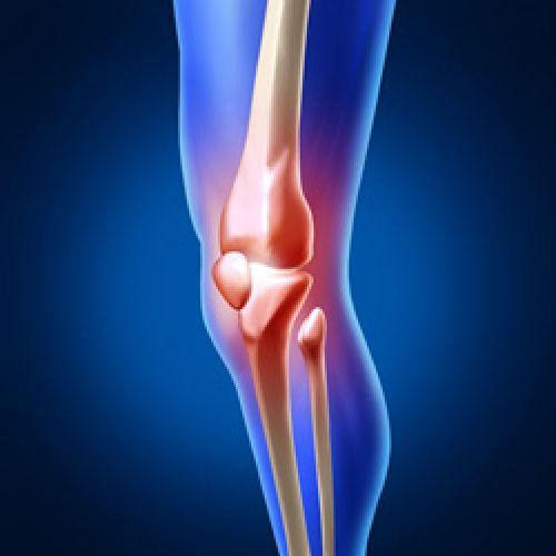 Видео: Артрит суставов, симптомы и профилактика.
